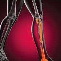 Treatment for Shin Splints